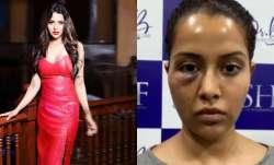 Tamil actress Raiza Wilson's face surgery goes wrong, shares photo blaming dermatologist