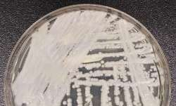 candida auris superbug fungus